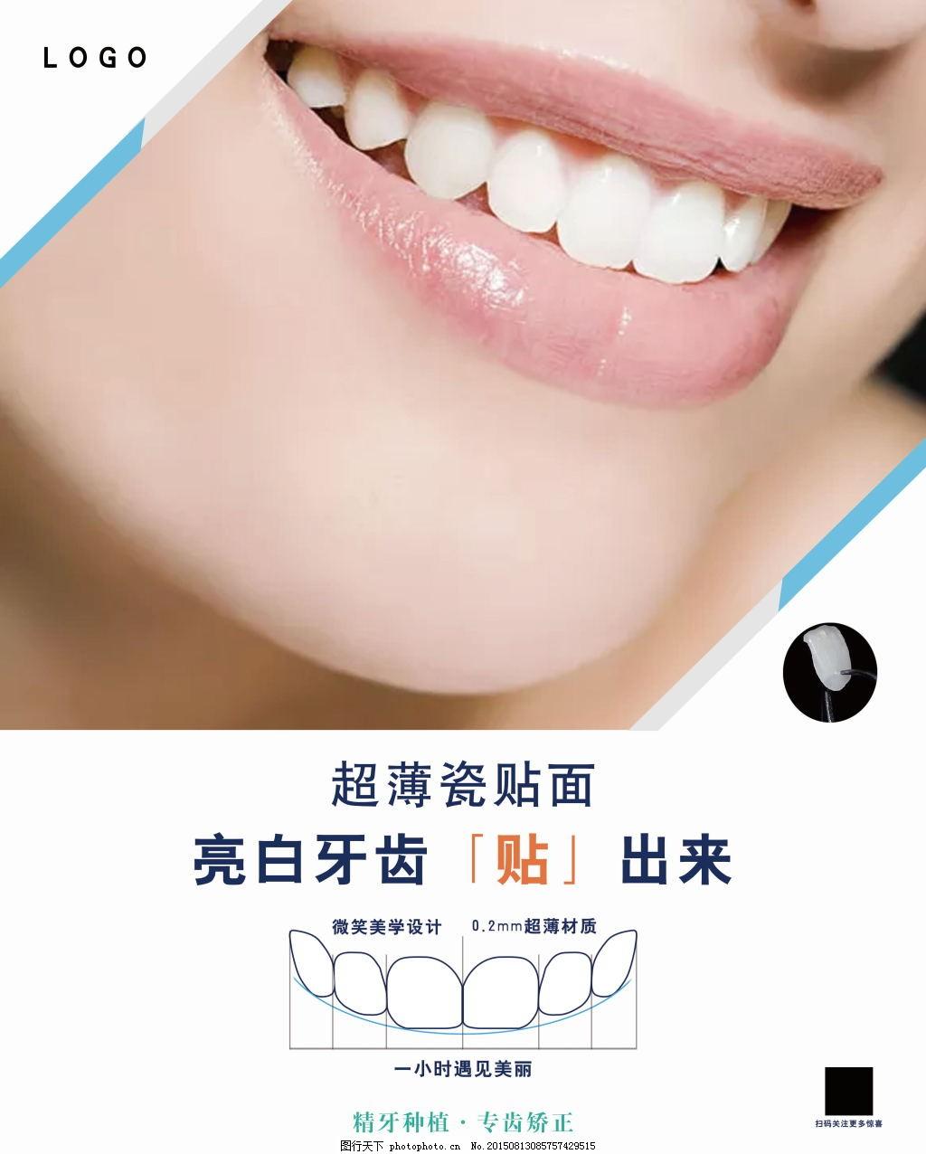瓷贴面商业宣传海报展板 口腔 口腔海报 口腔宣传